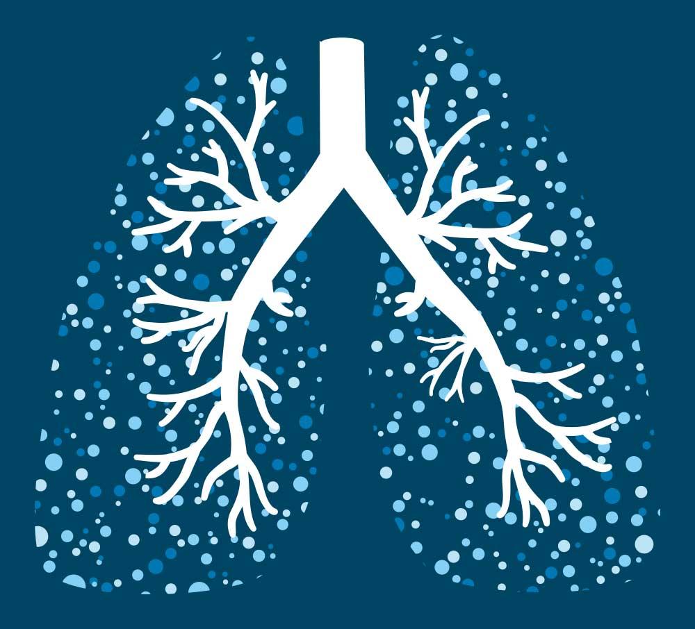 MEDIASTrial wetenschappelijk onderzoek vaststellen van lymfeklieruitzaaiingen niet-kleincellige longkanker
